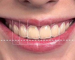Closeup of patient's smile with design animation