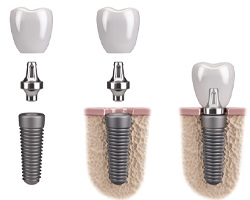 Detailed images of an implant, abutment, and dental crown